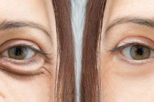 Come curare le occhiaie Palestra Taranto