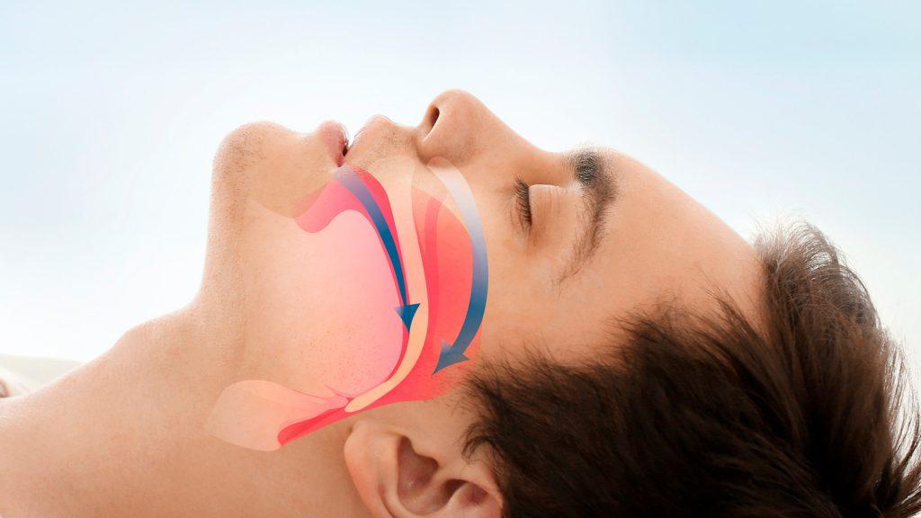 apnee-notturne